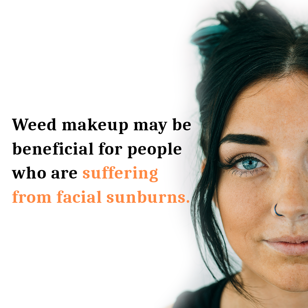 Weed Makeup for sunburn